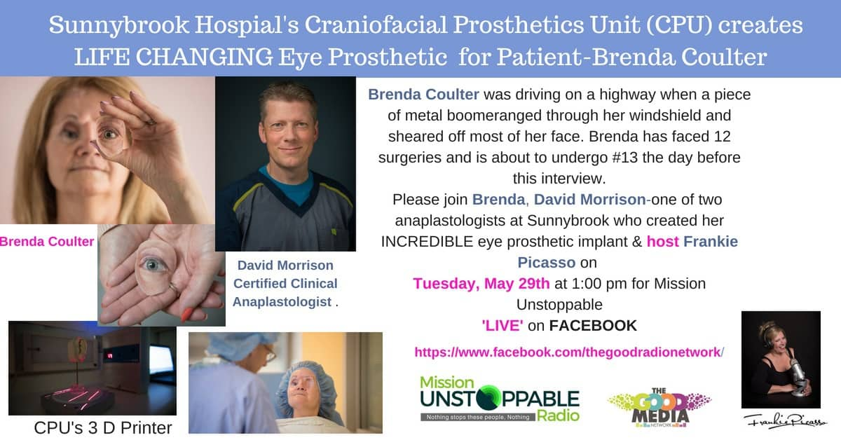 Brenda Coulter's Life Changing Surgery- Thanks to Sunnybrook Hospitals Cranial Prosthetics Unit